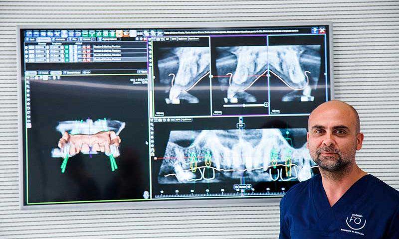 franco-quinti-chirurgia-guidata