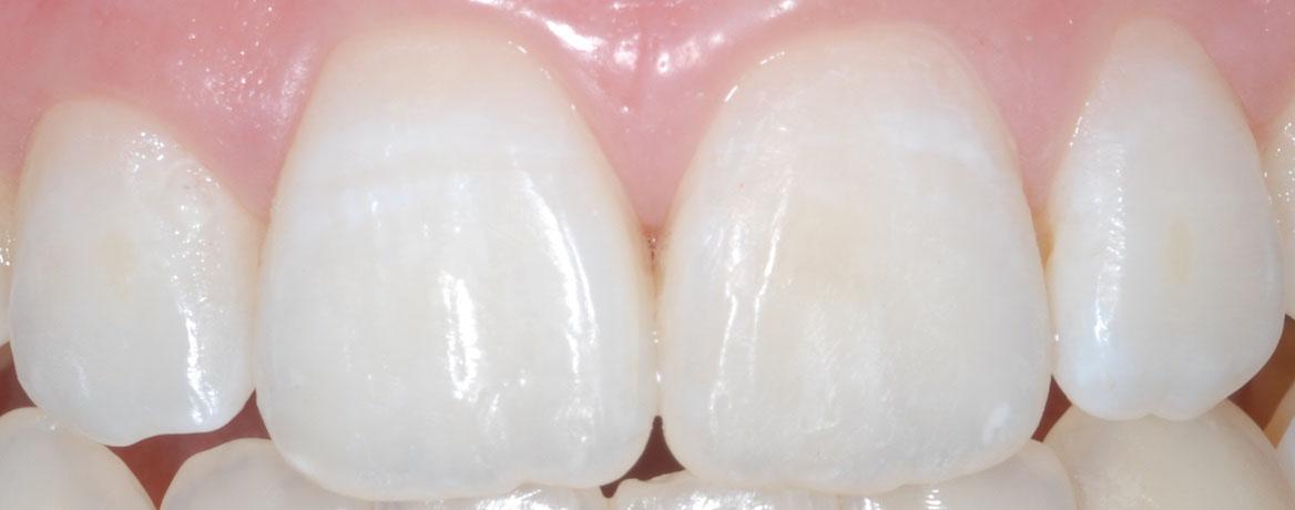 odontoiatria estetica - Arezzo