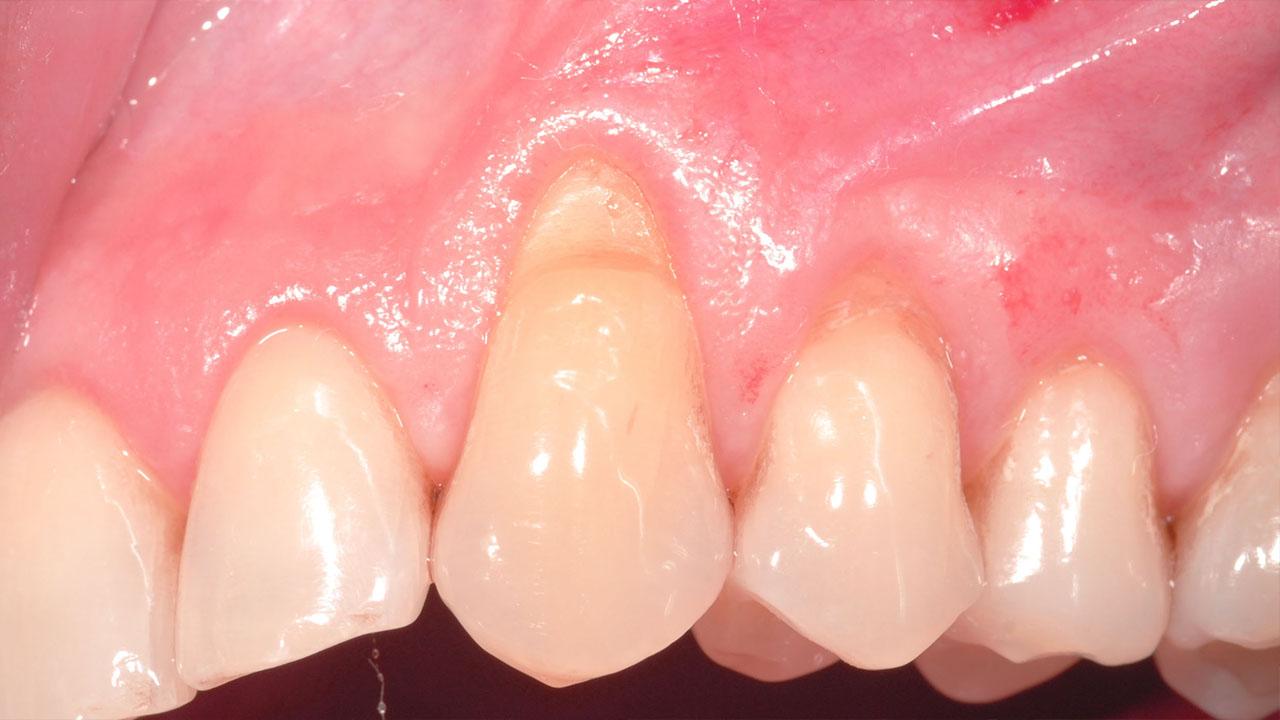 Parodontologia Arezzo
