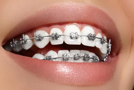 Ortodonzia tradizionale | Odontoiatria FQ | dentista arezzo