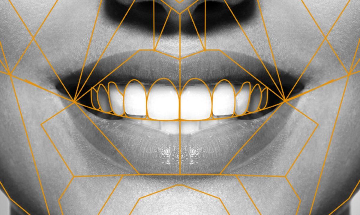 digital smile design | Odontoiatria fq