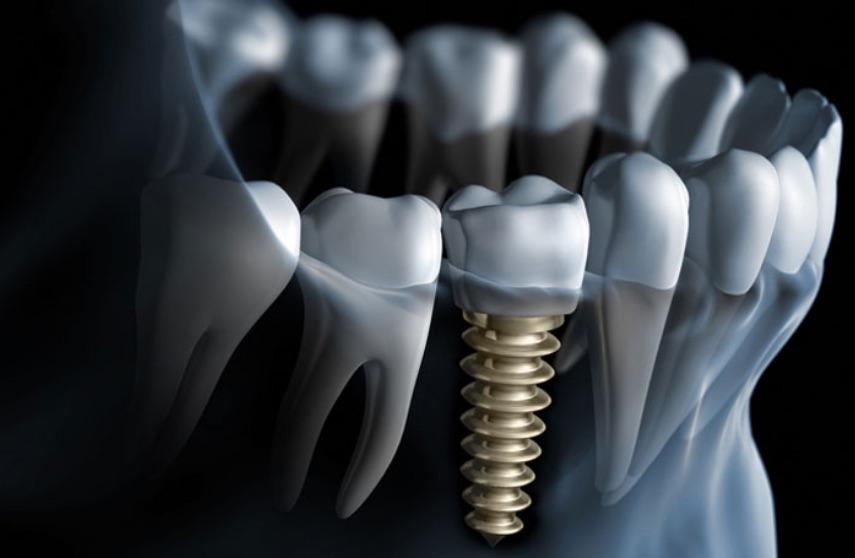 implantologia |Odontoiatria FQ | Dentista Arezzo