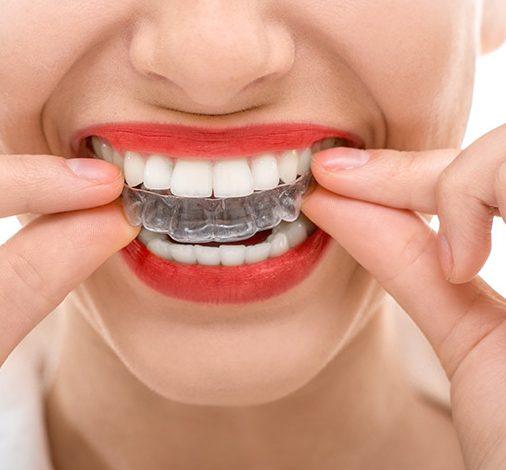 invisaling | Odontoiatria FQ | dentista arezzo