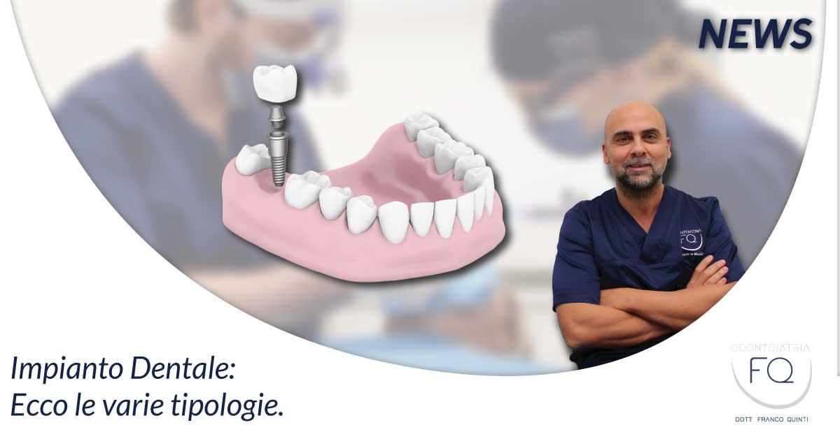 IMPIANTO DENTALE - Odontoiatria FQ - Dentista Arezzo