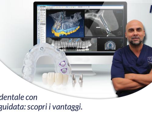 Impianto dentale con chirurgia guidata: scopri i vantaggi