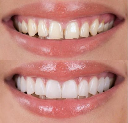 faccette dentali | Odontoiatria Fq | Dentista Monte San Savino Arezzo
