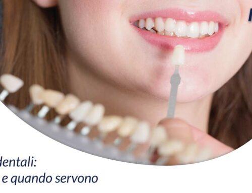 Faccette dentali: cosa sono e quando servono