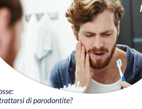 Gengive rosse: potrebbe trattarsi di parodontite.