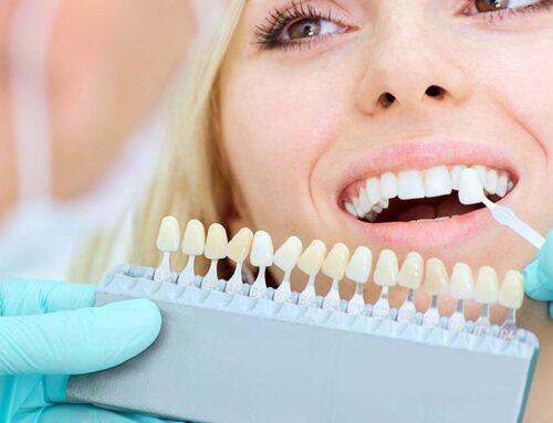 Faccette estetiche dentali: i materiali utilizzati e le loro caratteristiche