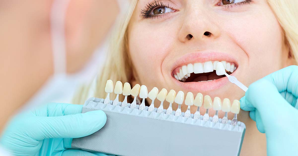 Faccette estetiche dentali | Odontoiatria FQ
