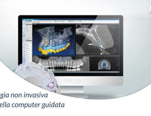 Implantologia non invasiva: i benefici della computer guidata