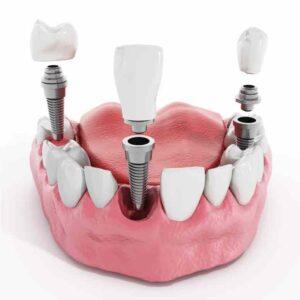 dolore dopo impianto dentale