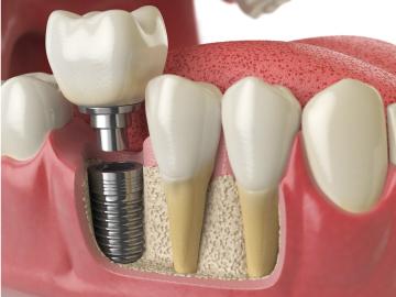 impianto-dentale-con-innesto-osseo-1