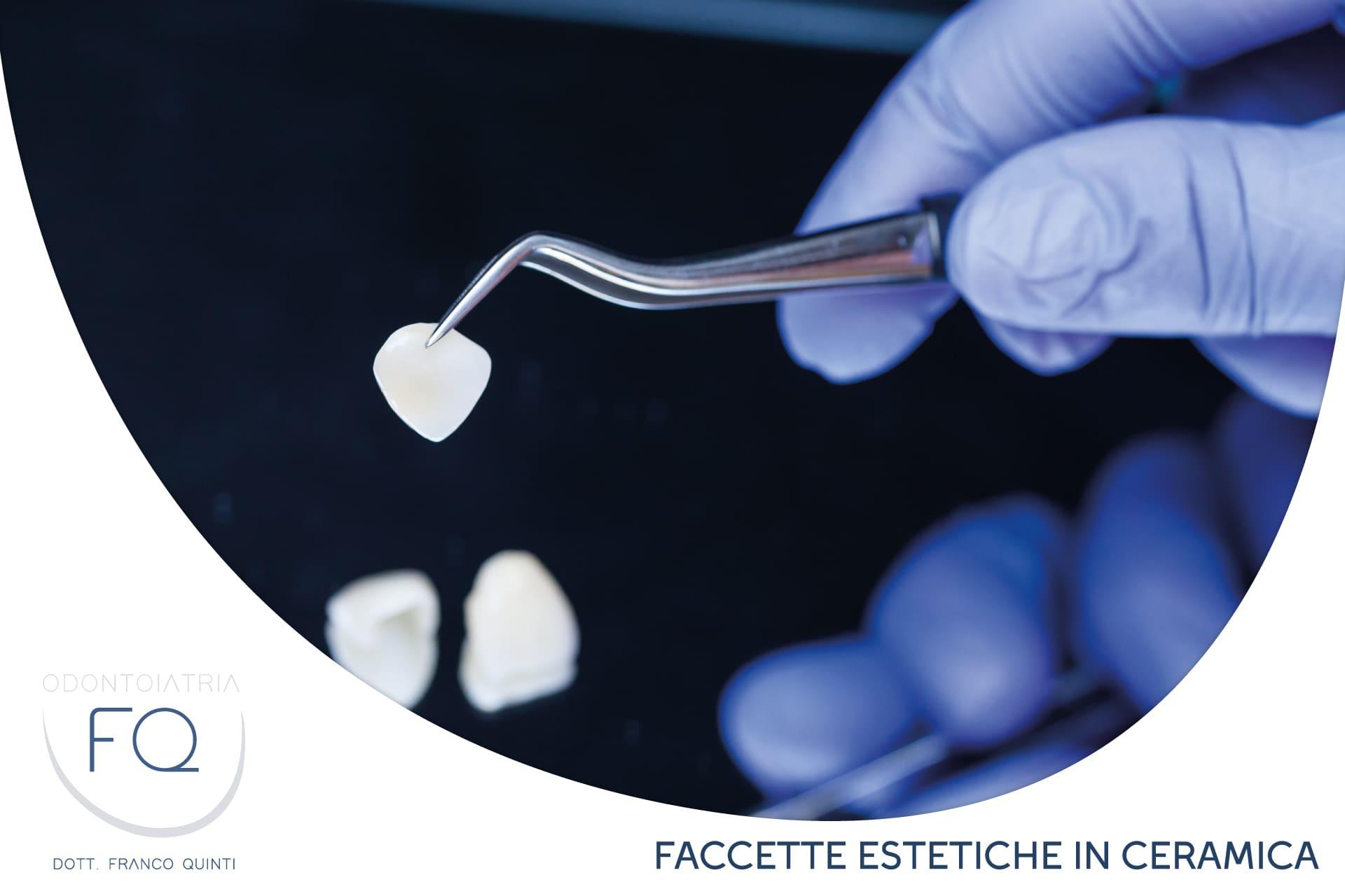 17_OdontoiatriaFQ_Ottobre_2021_faccette estetiche in ceramica
